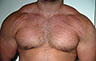 Gynecomastia Adults - Before and After Treatment Photos - male breasts, frontal view, patient 105