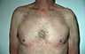 Gynecomastia Adults - Before and After Treatment Photos - male breasts, frontal view, patient 107