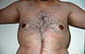 Gynecomastia Adults - Before and After Treatment Photos - male breasts, frontal view, patient 108