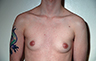 Female to Male, Top Surgery: Before and After Treatment Photos: male patient 16 (brests, frontal view)