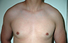 Gynecomastia Adolescents - Before and After Treatment Photos - man breasts (frontal view) patient 37