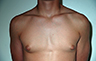 Gynecomastia Adolescents - Before and After Treatment Photos - man breasts (frontal view) patient 39