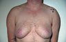 Female to Male, Top Surgery: Before and After Treatment Photos: male patient 20 (brests, frontal view)