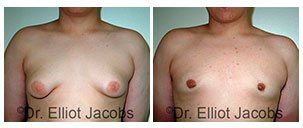 Before and After Treatment Photos - MALE BREAST REDUCTION SURGERY - man patient, front view