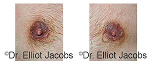 Before and After Treatment Photos - Scar Treatment - man patient, front view (nipples)