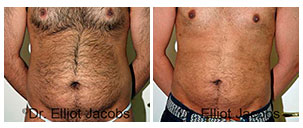 Before and After Treatment Photos - TORSOPLASTY  - man patient, front view (body)