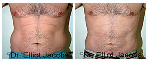 Before and After Treatment Photos - TORSOPLASTY CONSULTATION - male patient, front view (body)