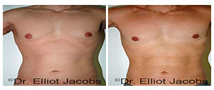 Before and After Treatment Photos - TORSOPLASTY AFTER THE SURGERY - male patient, front view (body)