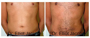 Male body - front view, Before & After Gallery – Torsoplasty