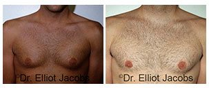 Before and After Treatment Photos - BODY BUILDERS - man patient, front view