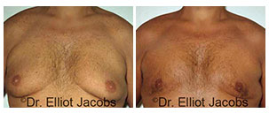 Before and After Treatment Photos - CHEST ASYMMETRY - man patient, front view (breasts asymmetry)