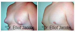 Before and After Treatment Photos - Puffy Nipples - man patient, oblique view