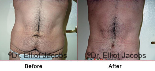 Mid Body Contouring Before and After Weight Loss male (frontal view)
