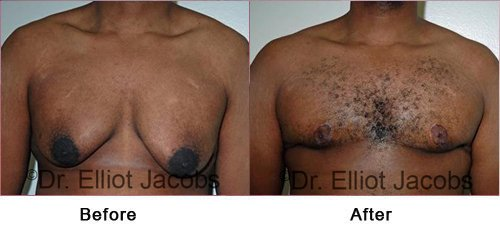 Gynecomastia Surgery. After Weight Loss - Before and After Photos - man (frontal view)
