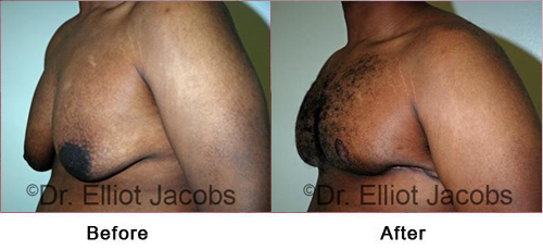 Gynecomastia Surgery. After Weight Loss - Before and After Photos - man (left side, oblique view)