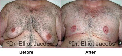 Gynecomastia Surgery. After Weight Loss - Before and After Photos - male (frontal view)