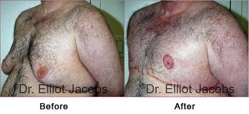 Gynecomastia Surgery. After Weight Loss - Before and After Photos - male (left side, oblique view)
