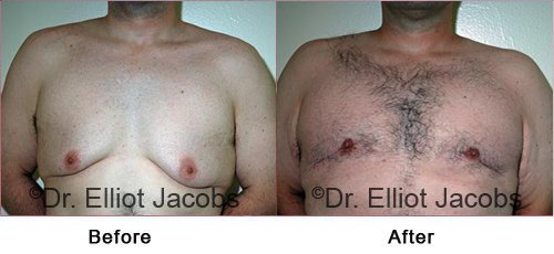 Gynecomastia Surgery - After Weight Loss - Before and After Photos - male (frontal view)