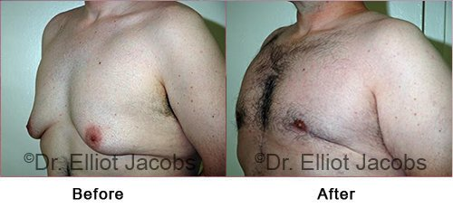 Gynecomastia Surgery - After Weight Loss - Before and After Photos - male (left side, oblique view)