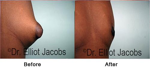 FTM Top Surgery: Nipple - Before and After Photos - oblique view, nipples