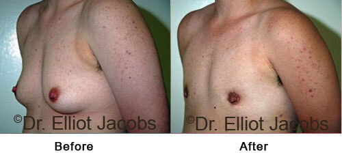FTM Top Surgery: Nipple - Before and After Photos - oblique view, patient 2