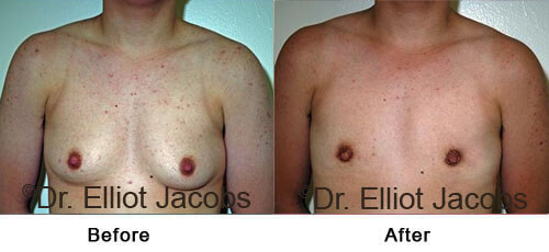 FTM Top Surgery: Nipple - Before and After Photos - front view, patient 2