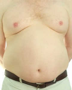 Gynecomastia and Your Weight