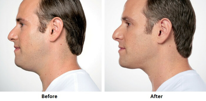 Gynecomastia NYC. Before and After Kybella Photos - male (left side view) patient 2