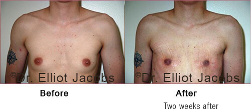 FTM Top Surgery: Nipple - before and After Photos (man)