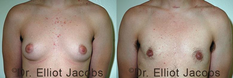 Transgender surgery results