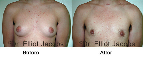 Transgender Surgery - Before and After Treatment photos - front view, patient 1