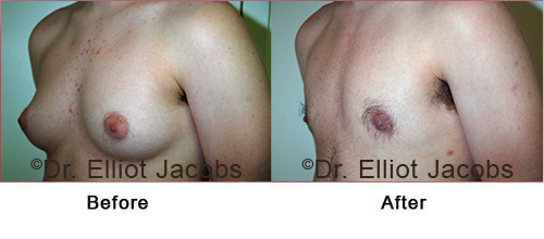 Transgender Surgery - Before and After Treatment photos - oblique view, patient 1