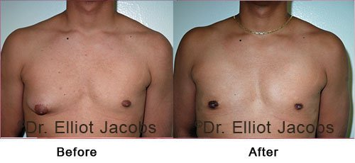 ADOLESCENT GYNECOMASTIA. Before and After Photo - male (front view)