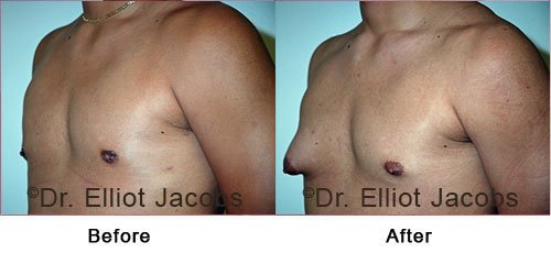 ADOLESCENT GYNECOMASTIA. Before and After Photo - male (left side, oblique view)