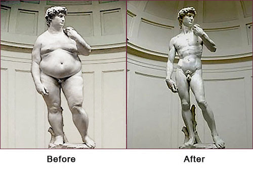 TORSOPLASTY - Before and After Treatment Photos - fat male sculpture and thin male sculpture