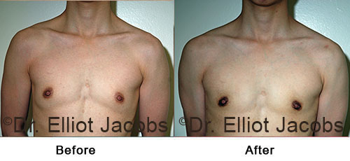 FTM Top Surgery: Nipple - before and After Photos (male)
