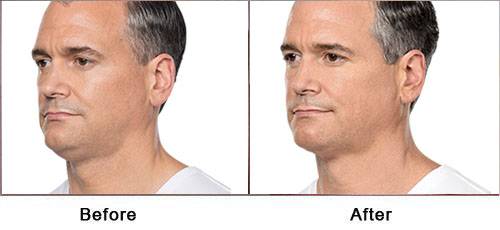 KYBELLA TREATMENT IN NEW YORK WITH DR. JACOBS - Before and After Treatment photos - male patient (oblique view)