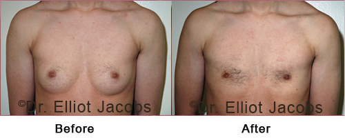 FTM Top Surgery: Nipple - Before and After Photos - front view, patient 1