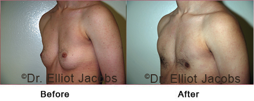 FTM Top Surgery: Nipple - Before and After Photos - oblique view, patient 1