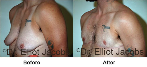 Gynecomastia. Before and After Photos - patient 7 (frontal view)