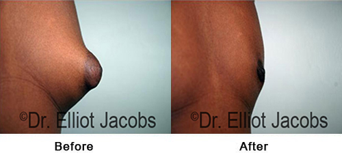 Before and After Treatment Photos - Puffy Nipples - man, side view (nipple), patient 1