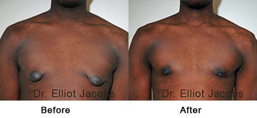 Before and After Treatment Photos - Puffy Nipples - man, front view (nipple), patient 2