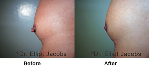 Before and After Treatment Photos - Puffy Nipples - man, side view (nipple), patient 3